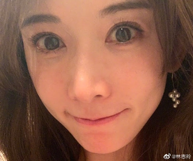 Lin Chi-ling Shocks Netizens with Change in Appearance, Plastic Surgery Speculations Arise